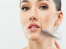 Acne Skin Face Treatment